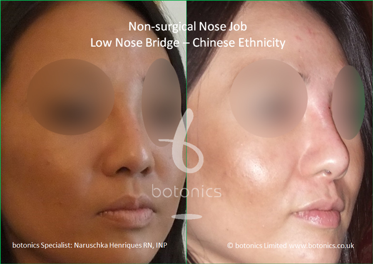 Before and after Chinese nose enhancement to elevate bridge and project columella three quarter right profile