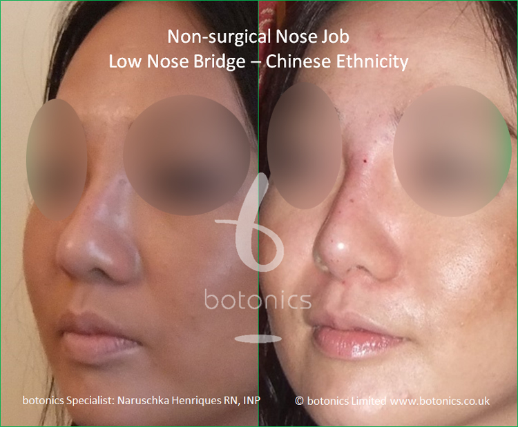 Before and after Chinese nose enhancement to elevate bridge and project columella three quarter left profile