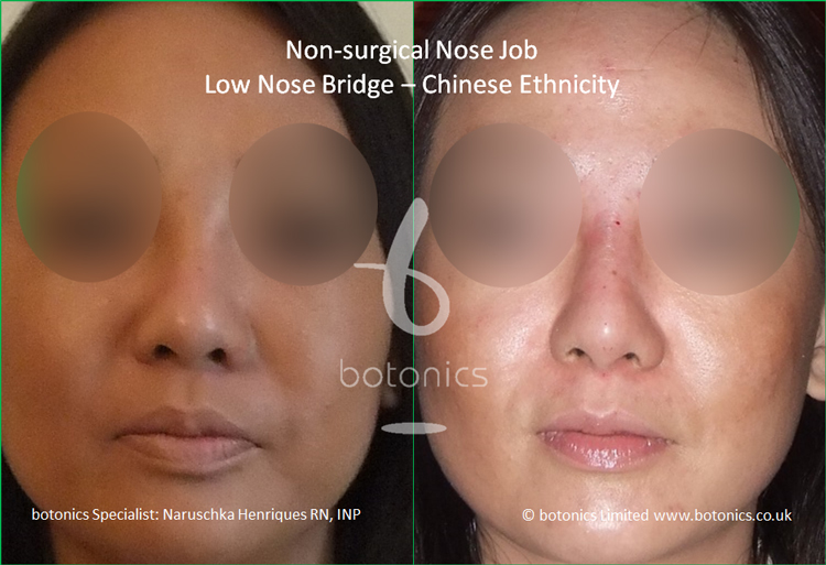 Before and after Chinese nose enhancement to elevate bridge and project columella front view