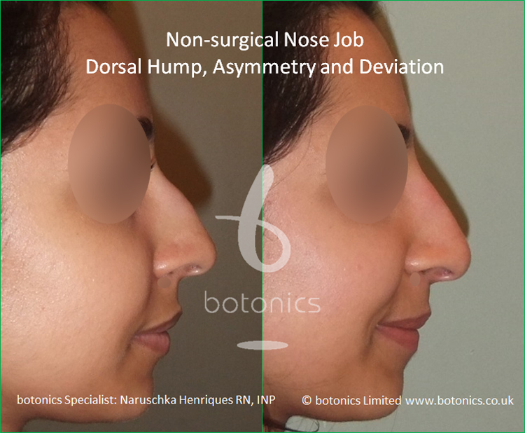 Non surgical nose job Indian female before after pictures dorsal hump and crooked nose