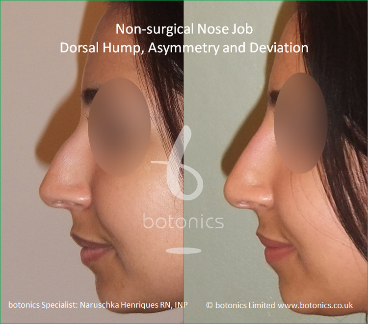 Non surgical nose job Indian female before after pictures dorsal hump and crooked nose left profile