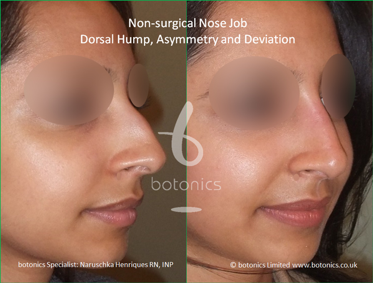 Non surgical nose job Indian female before after pictures dorsal hump and crooked nose right three quarter view