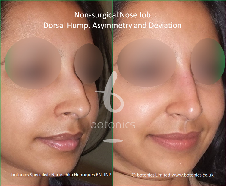 Non surgical nose job Indian female before after pictures dorsal hump and crooked nose right view