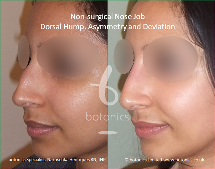 Non surgical nose job Indian female before after pictures dorsal hump and crooked nose left view