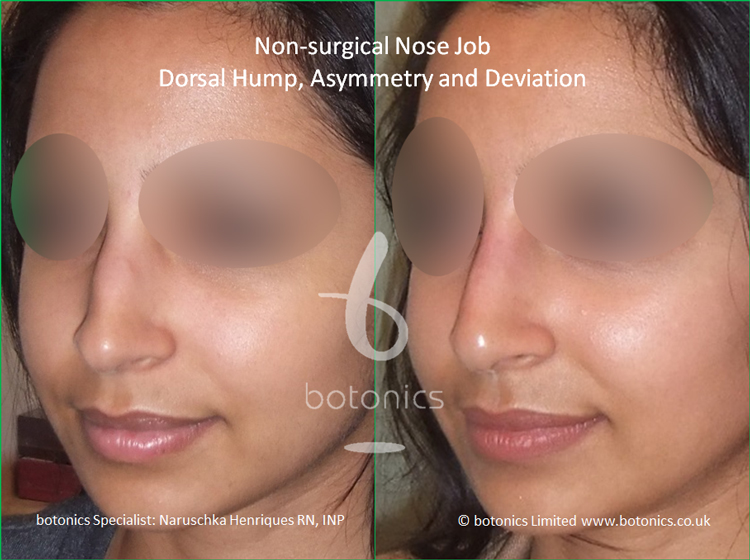 Non surgical nose job Indian female before after pictures dorsal hump and crooked nose left three quarter view