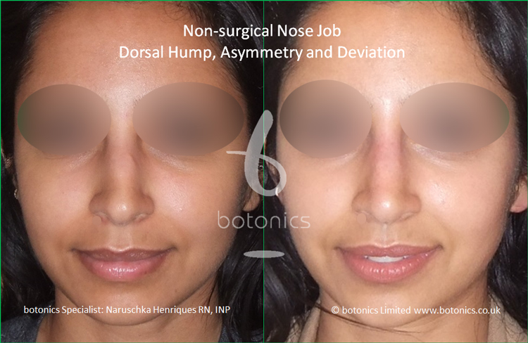 Non surgical nose job Indian female before after pictures dorsal hump and crooked nose front view