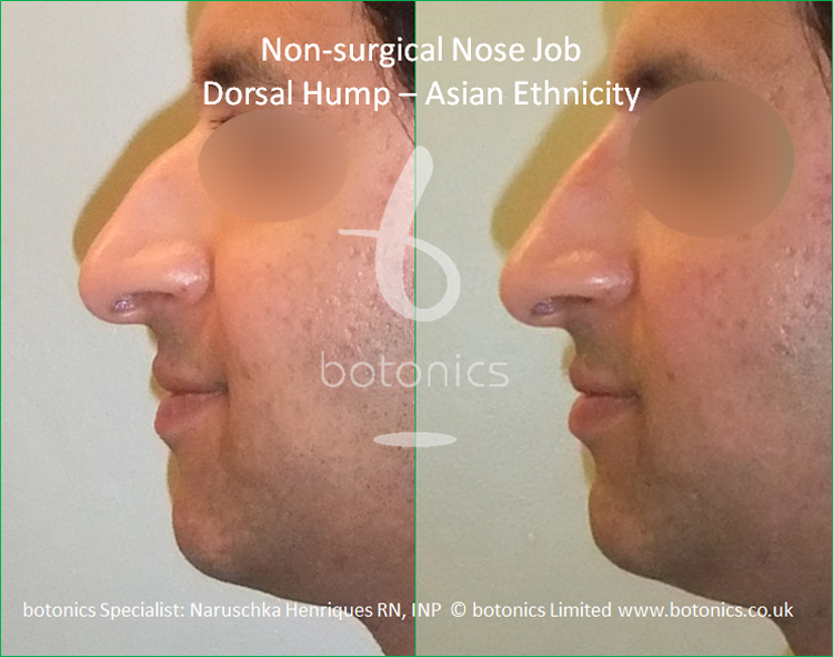 Dorsal hump and droopy tip - no knife rhinoplasty