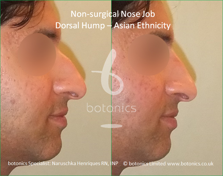 Dorsal hump and droopy tip - no knife rhinoplasty right profile