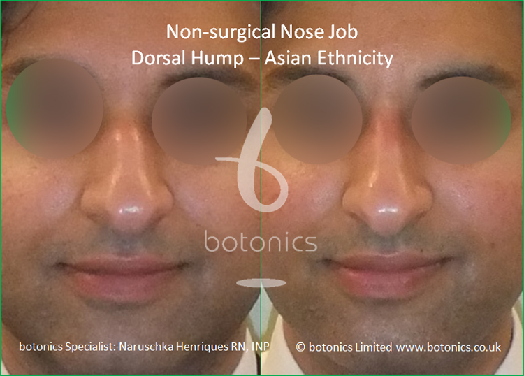 Dorsal hump and droopy tip - no knife rhinoplasty front view