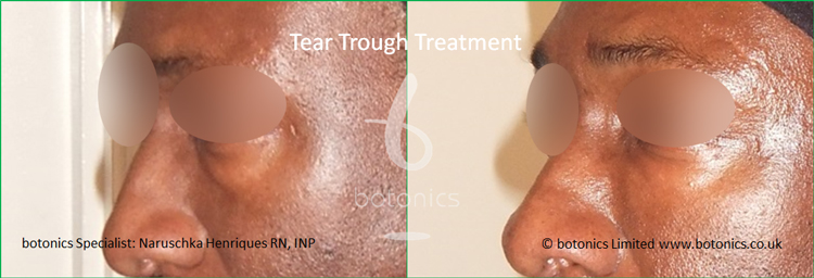 black male tear trough 2ml Perlane before after
