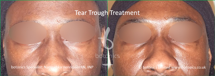black male tear trough 2ml Perlane before after front view