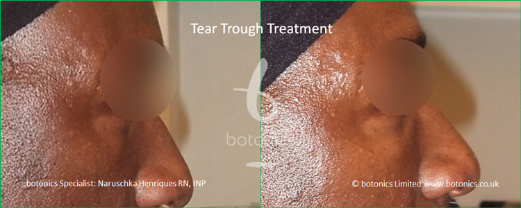 black male tear trough 2ml Perlane before after right full profile