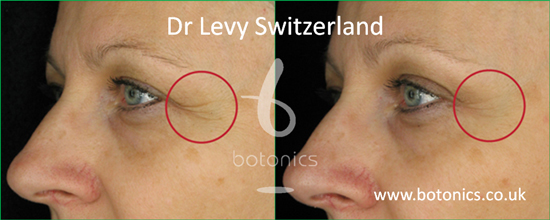 before and after photo of dr levy swizterland stem cell cosmeceuticals female crows feet