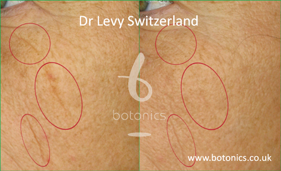 before and after photo of dr levy swizterland stem cell cosmeceuticals female cheeks