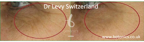 before and after photo of dr levy swizterland stem cell cosmeceuticals female crows feet closer up