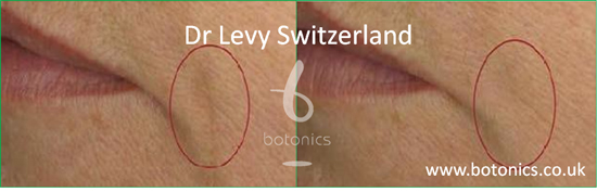 before and after photo of dr levy swizterland stem cell cosmeceuticals female side of mouth