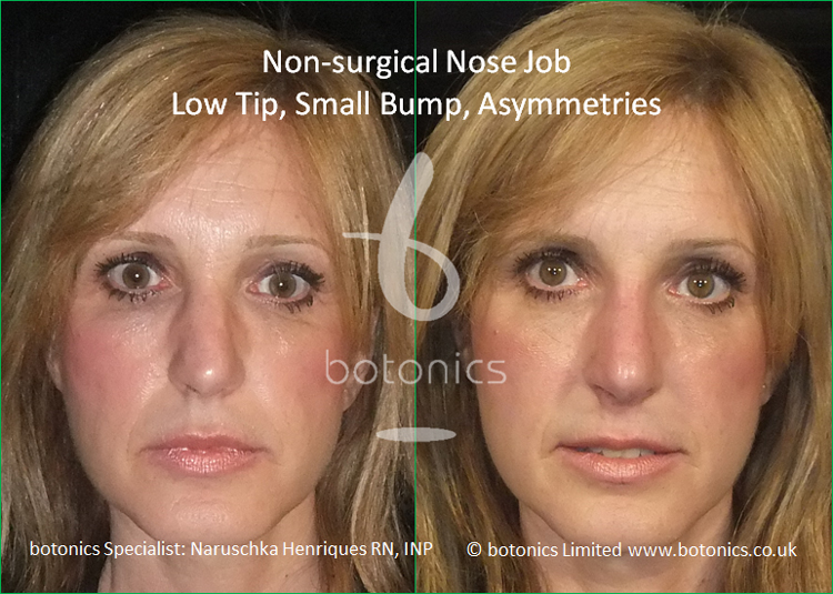 Non surgical nose job to latin female to correct low tip, dorsal hump and asymmetries front view