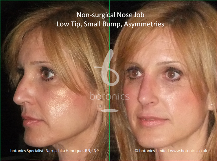 Non surgical nose job to latin female to correct low tip, dorsal hump and asymmetries left three quarter view