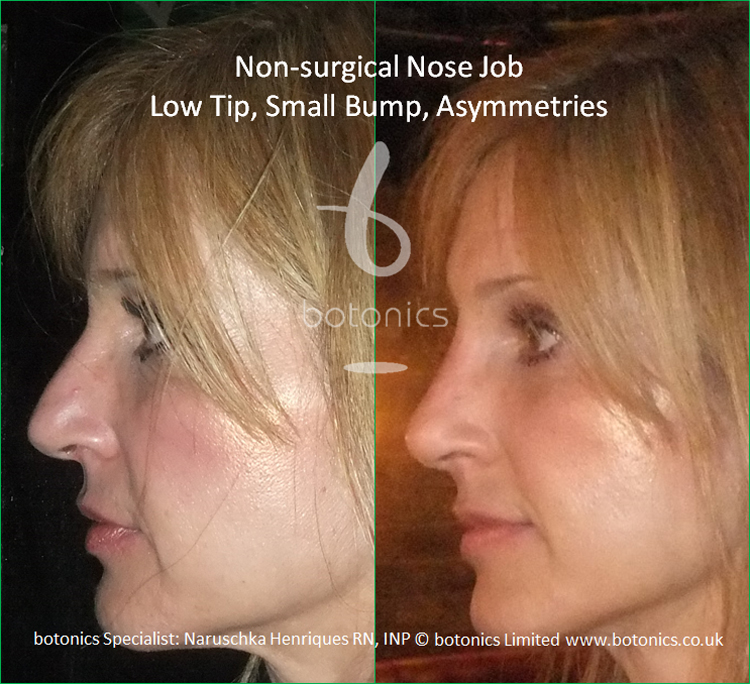 Non surgical nose job to latin female to correct low tip, dorsal hump and asymmetries left profile view