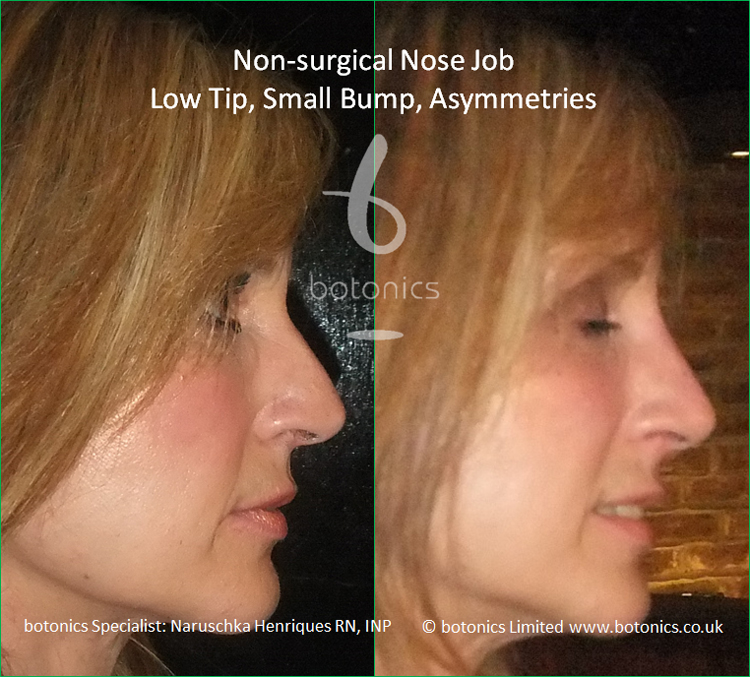 Non surgical nose job to latin female to correct low tip, dorsal hump and asymmetries right profile view