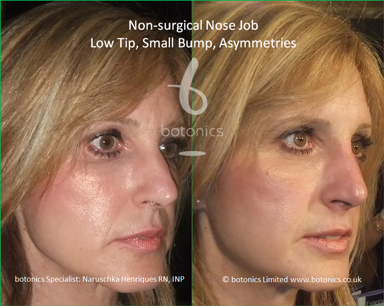 Non surgical nose job to latin female to correct low tip, dorsal hump and asymmetries right three quarter view