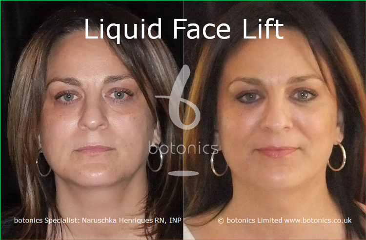 liquid face lift olive skinned female tear trough cheek enhancement lip enhancement dermal filler botonics naruschka henriques