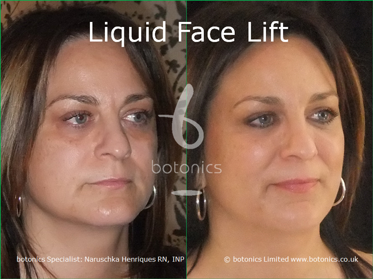 liquid face lift olive skinned female tear trough cheek enhancement lip enhancement dermal filler botonics naruschka henriques right three quarter view
