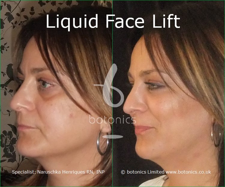liquid face lift olive skinned female tear trough cheek enhancement lip enhancement dermal filler botonics naruschka henriques left view