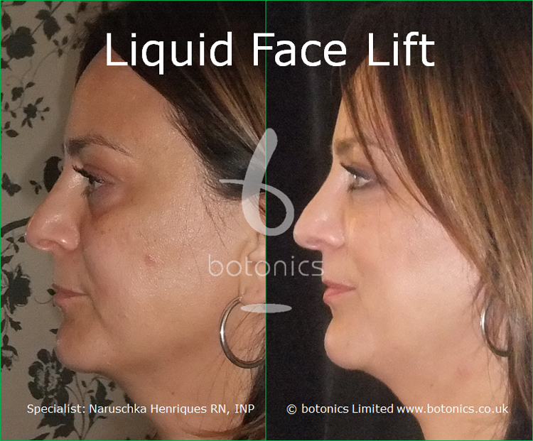 liquid face lift olive skinned female tear trough cheek enhancement lip enhancement dermal filler botonics naruschka henriques left profile view
