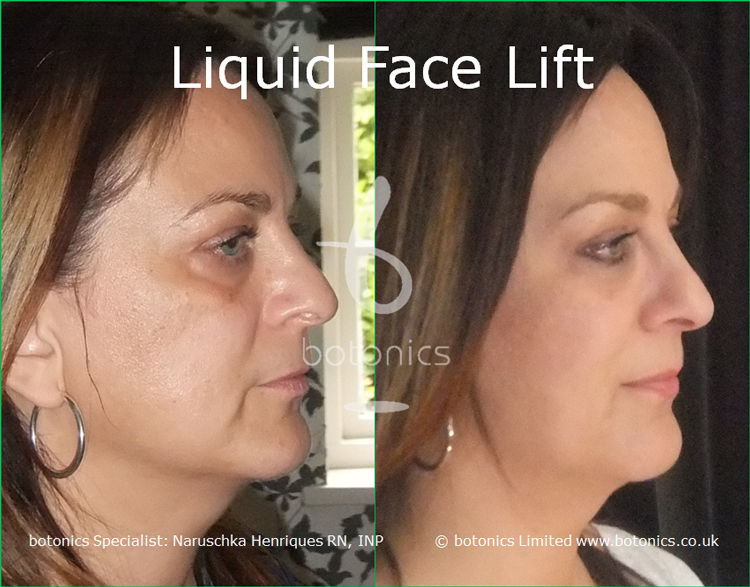 liquid face lift olive skinned female tear trough cheek enhancement lip enhancement dermal filler botonics naruschka henriques right view