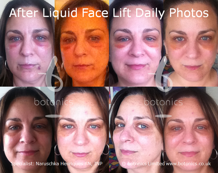 Daily photos taken for 8 days after liquid face lift