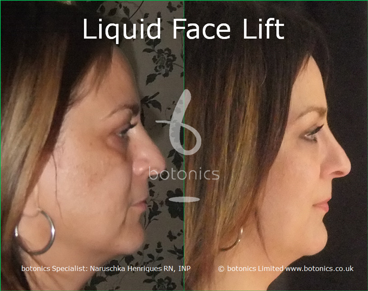 liquid face lift olive skinned female tear trough cheek enhancement lip enhancement dermal filler botonics naruschka henriques right profile view