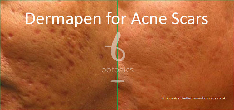 Acne scar treatment before and after medical grade needling treatment