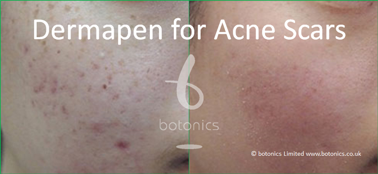 Collagen induction therapy on acne scars showing before and after medical needling