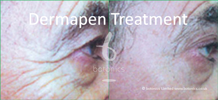 Improvement of deep crows feet following dermapen 3 collagen induction treatment before and after