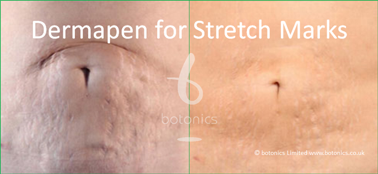 Medical grade dermapen 3 treatment of stretch marks before and after