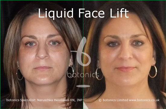 Dermal Fillers - Wrinkle Reduction Treatment - botonics