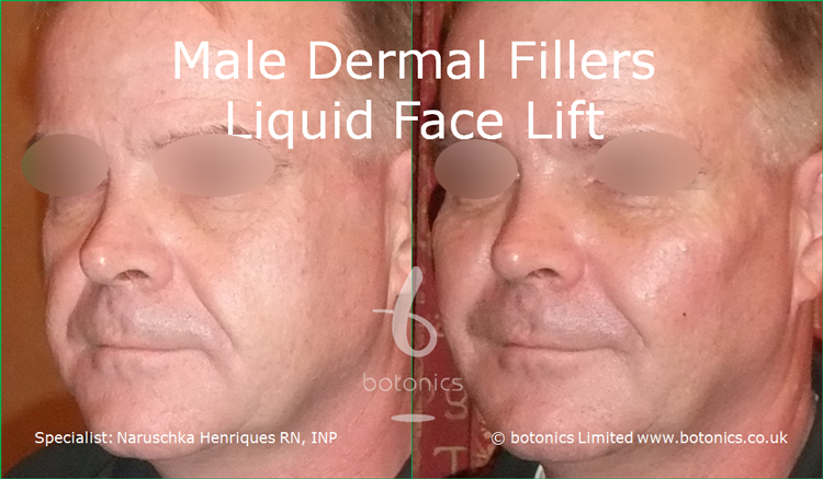 Male dermal filler treatments for cheeks, tear trough, nasolabials and chin using Restylane Sub-Q, Radiesse and Perlane from left