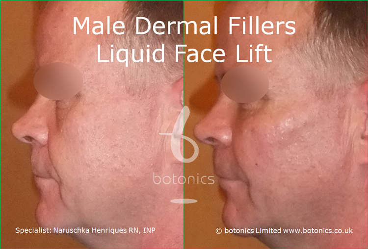 Male dermal filler treatments for cheeks, tear trough, nasolabials and chin using Restylane Sub-Q, Radiesse and Perlane from left profile