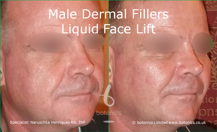 Male dermal filler treatments for cheeks, tear trough, nasolabials and chin using Restylane Sub-Q, Radiesse and Perlane from right