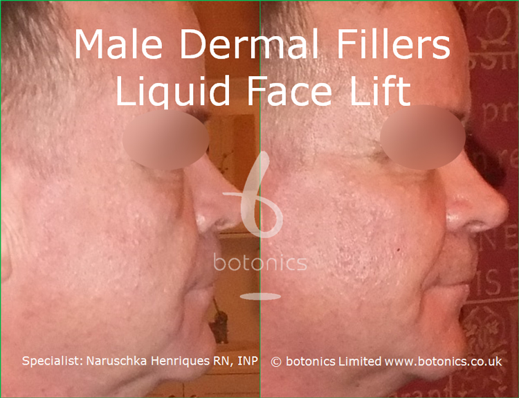 Male dermal filler treatments for cheeks, tear trough, nasolabials and chin using Restylane Sub-Q, Radiesse and Perlane from right profile