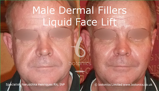 Male dermal filler treatments for cheeks, tear trough, nasolabials and chin using Restylane Sub-Q, Radiesse and Perlane