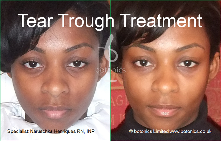 tear trough treatment 18 year old black woman before after photo as seen on katie pipers bodyshockers front view