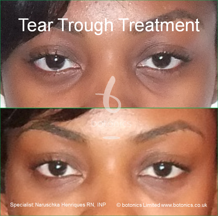 tear trough treatment 18 year old black woman before after photo as seen on katie pipers bodyshockers close up