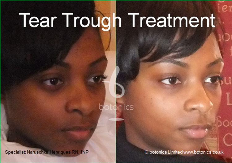 tear trough treatment 18 year old black woman before after photo as seen on katie pipers bodyshockers right view