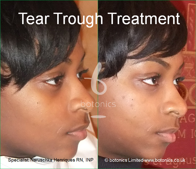 tear trough treatment 18 year old black woman before after photo as seen on katie pipers bodyshockers right side