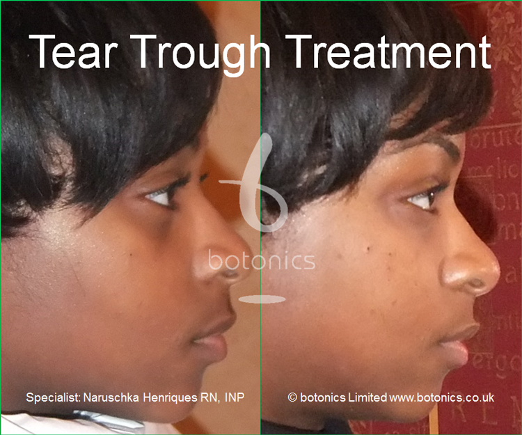 tear trough treatment 18 year old black woman before after photo as seen on katie pipers bodyshockers right profile