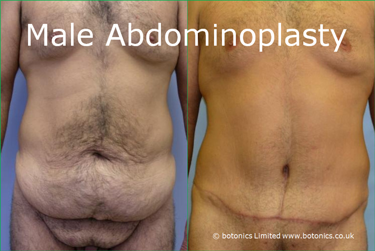 Before and after photo of male tummy tuck abdominoplasty liposuction
