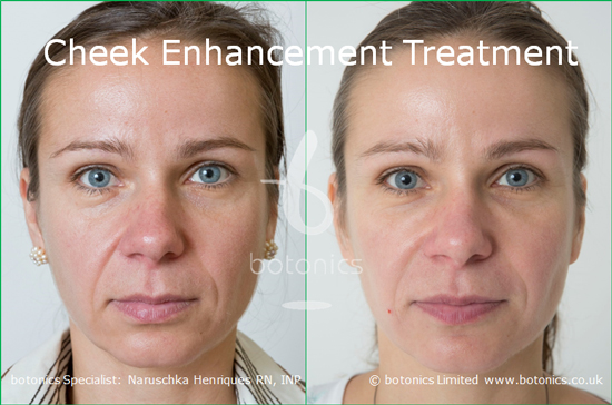 cheek augmentation before and after photo