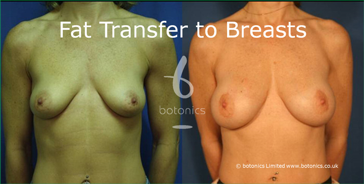 before and after photo of high volume fat grafting for breast enhancement